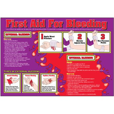 First Aid For Bleeding Wallchart