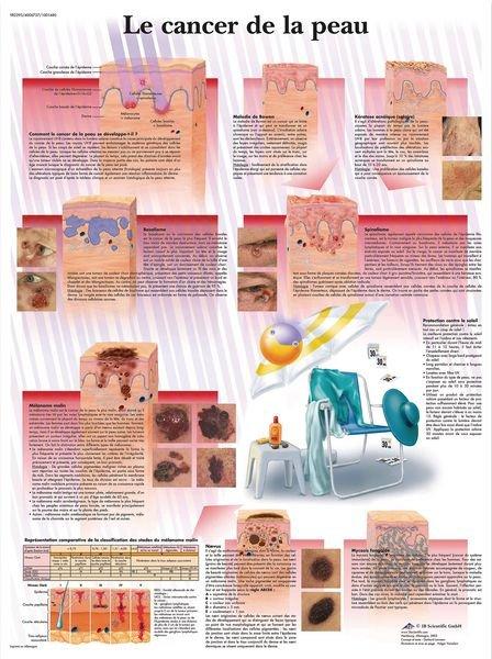Planche anatomique - Cancer de la peau