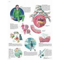 Planche anatomique - Asthme