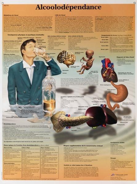 Planche anatomique - Effets de l'alcool
