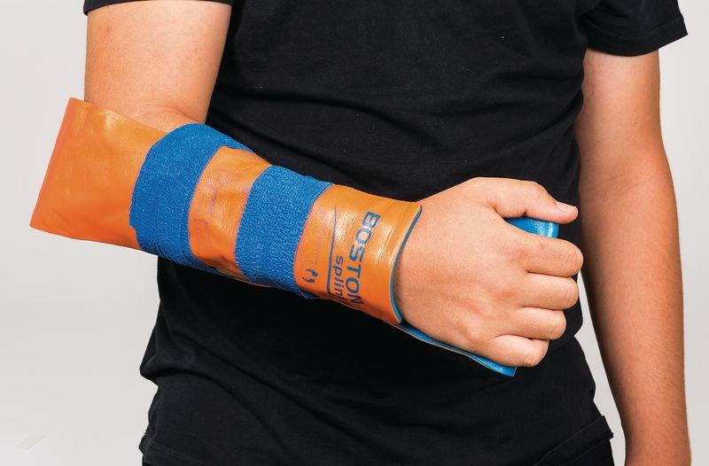 Attelle modelable et réutilisable Boston Splint - Défibrillateurs