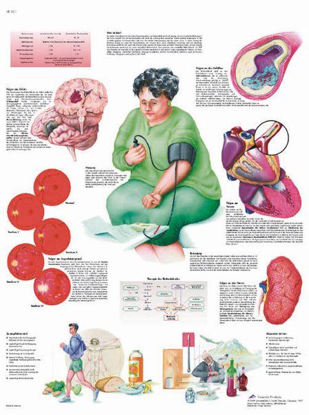 Planche anatomique - Hypertension