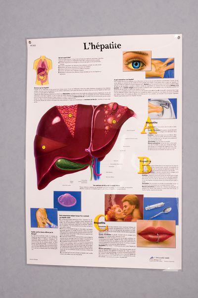 Planche anatomique - Hépatite