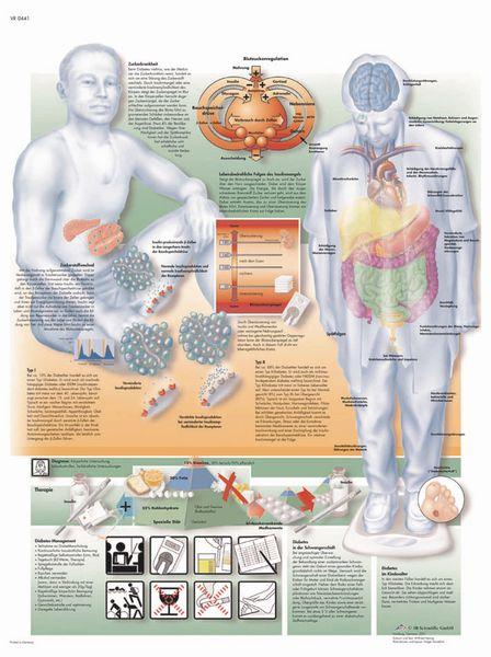 Planche anatomique - Diabète