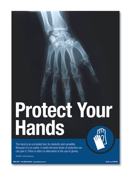 Protect Your Hands Safety Posters