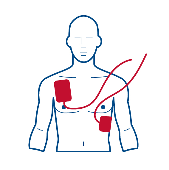 Placement of AED pads