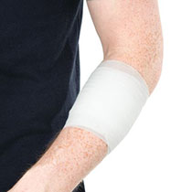 Arm dressed with a conforming bandage